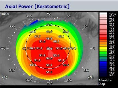 重度の円錐角膜